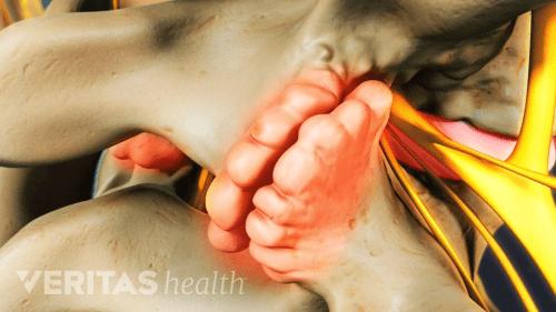 small resolution of lumbar facet pain diagram