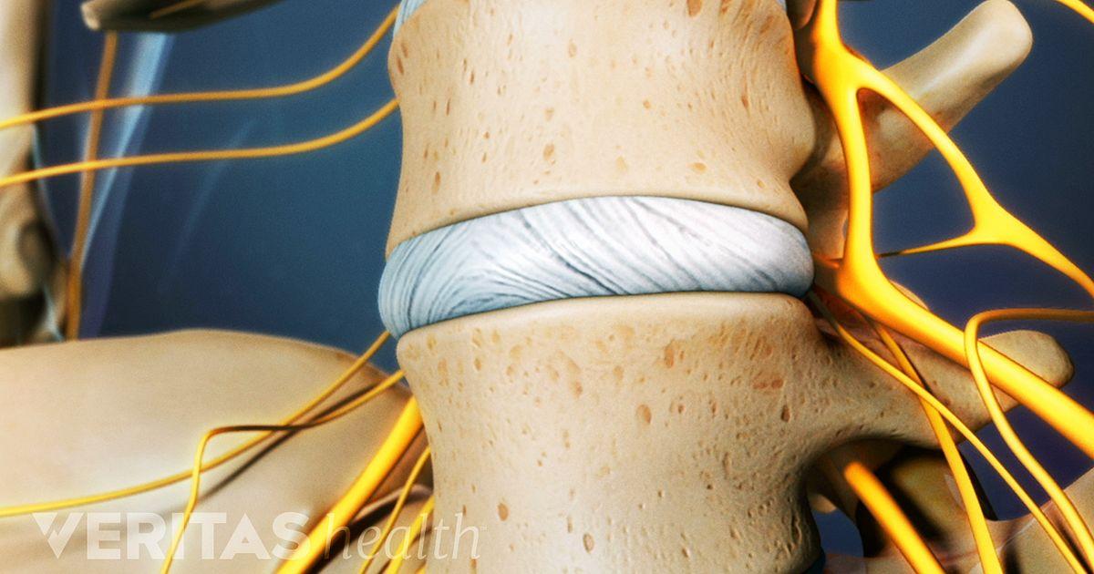 Lumbar Discogram Procedure