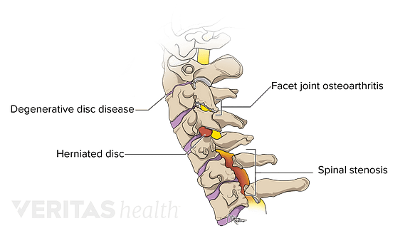 cervical vertebrae diagram bulldog radio wiring all about the c7 t1 spinal segment cervicothoracic junction conditions that may occur in spine