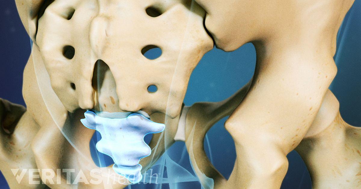 Treatment for Coccydynia Tailbone Pain