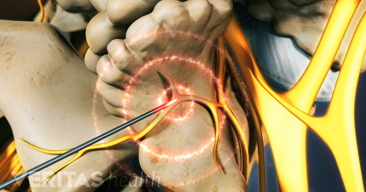 Back Ablation Pain Radiofrequency