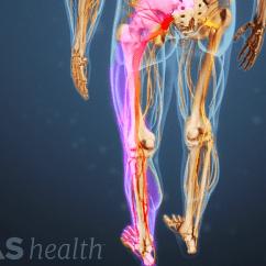 Diagram Of Sciatic Nerve Leg Citroen Berlingo Wiring Towbar The Truth About Sciatica