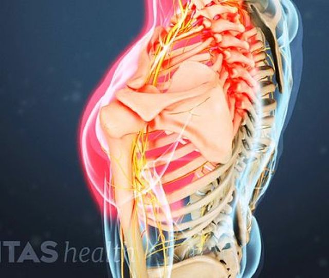 Symptoms Of A Cervical Herniated Disc