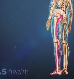 diagram of leg pain [ 1280 x 720 Pixel ]