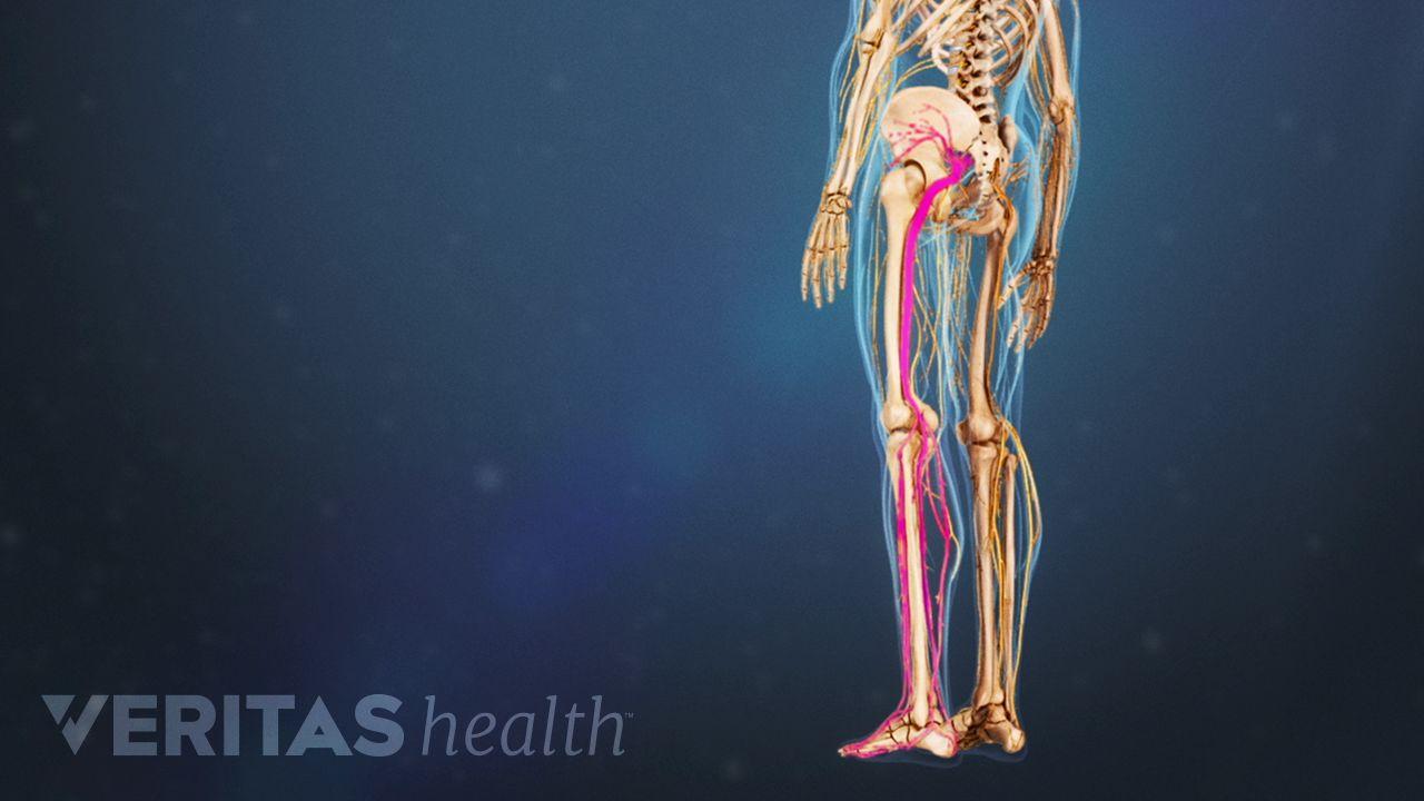hight resolution of diagram of leg pain