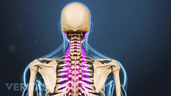 Stiff Neck Causes Symptoms And Treatment