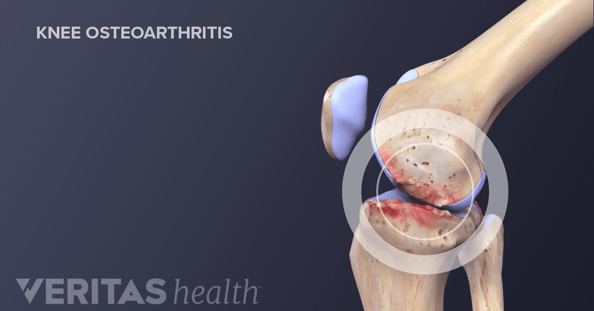 Crepitus in the Knee  ArthritisHealth
