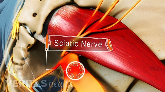 best chair for sciatica problems task with arms 4 commonly overlooked remedies