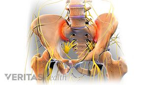 sacroiliac joint diagram 1979 peterbilt 359 wiring dysfunction video steroid injection all about sacroiliitis