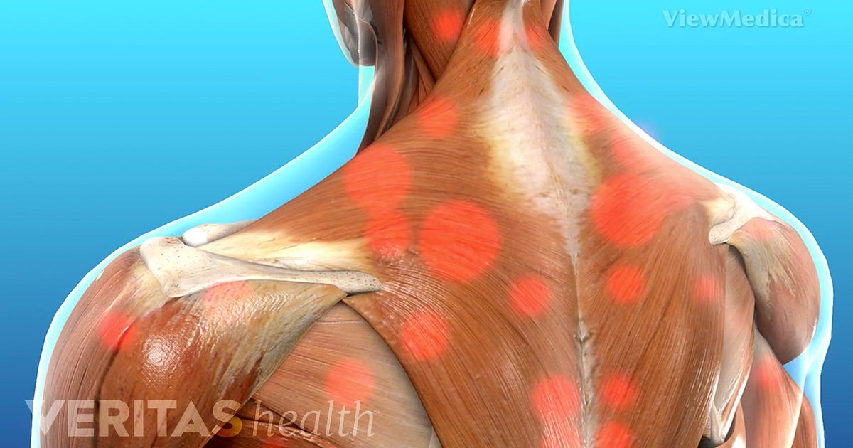 Myofascial Pain Syndrome Video
