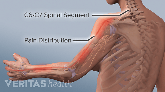 nerves in neck and shoulder diagram evinrude wiring all about the c6 c7 spinal segment medical illustration of pain distribution radiculopathy arm