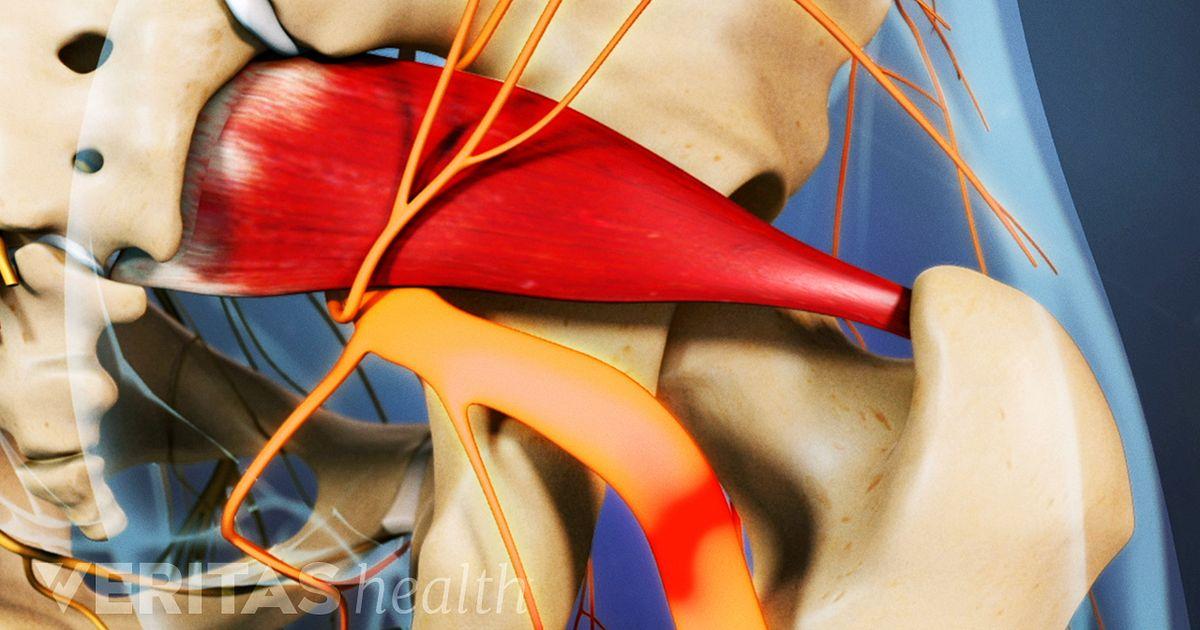 Understanding Piriformis Syndrome