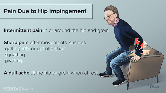 chairs for hip pain baby bouncy chair canada impingement symptoms