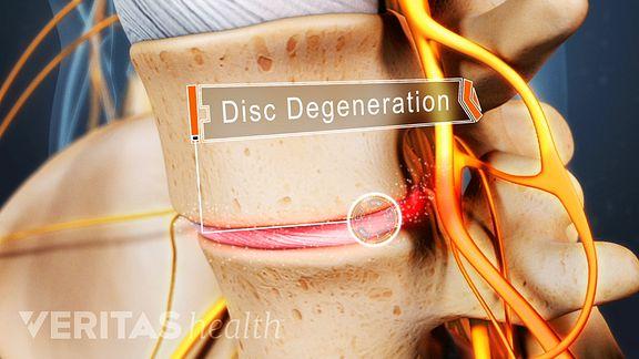 Degenerative Disc Disease Definition | Back Pain and Neck
