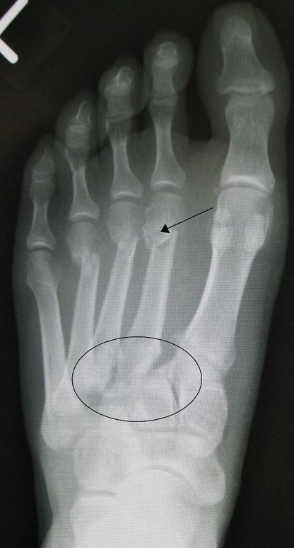 Lisfranc fracture From Wikipaedia.com