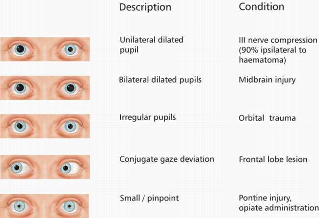 Pupils sizes - EMCAGEDilated Pupils Drugs What Mm