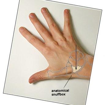 Hand Wrist Specialist Staten Island