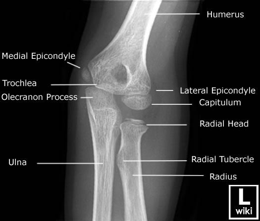 Elbow injuries - EMCAGE