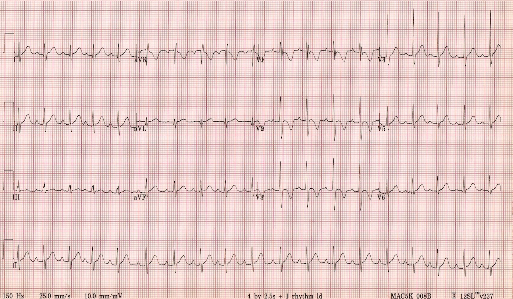 Paediatric ECG interpretation in the emergency department - EMCAGE
