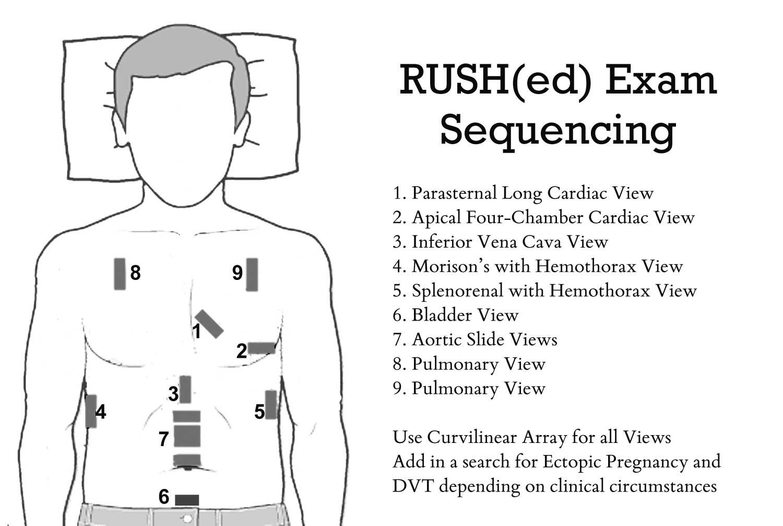 The Rush Exam