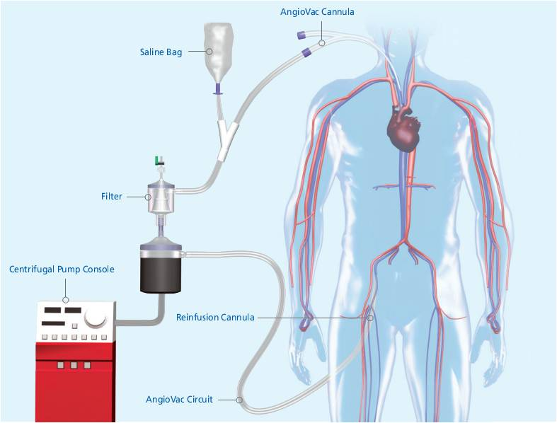 Podcast 128 - Pulmonary Embolism Treatment Options and the PEAC ...
