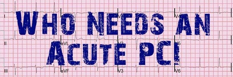 Which Patient should get Acute Cath Lab Activation in MI?