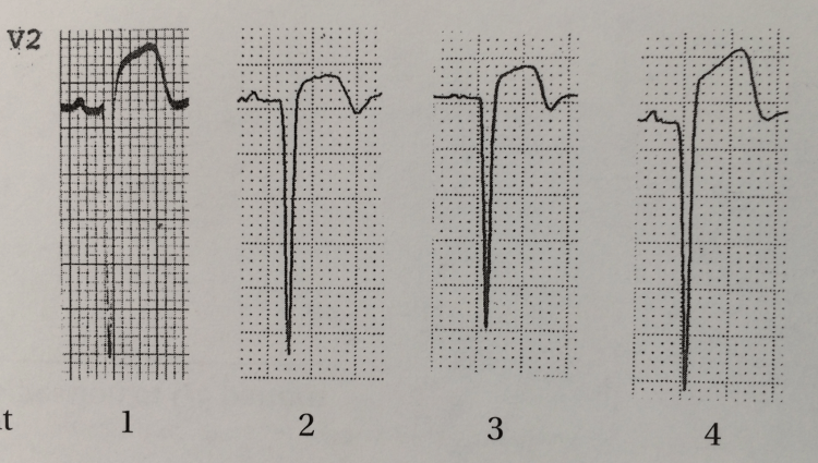 Here are some Morphologies that DR. Wang says are STEMI in LVH, Steve is sure of the 1st and 4th, and pretty sure of the 2nd and 3rd.