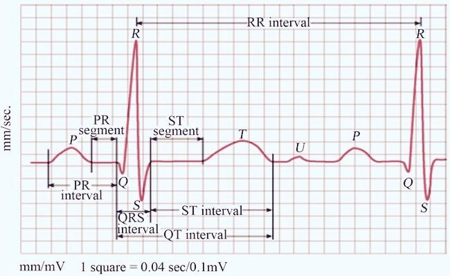 The Case Of The Indiscriminate Waveform
