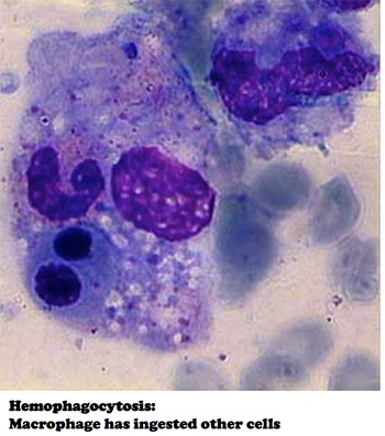 aemophagocytic lymphohistiocytosis hlh Hemophagocytic lymphohistiocytosis hemophagocytic syndrome (hlh) is a potentially fatal complication of ebv infection and is present in most cases of fatal infectious mononucleosis67 from: diagnostic pathology of infectious disease , 2010.