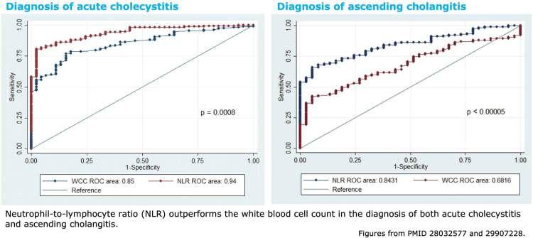 Community acquired biliary sepsis (ascending cholangitis