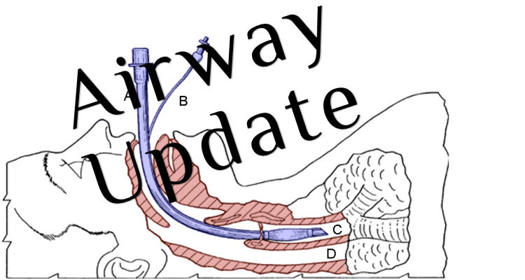 We Dont See Itthe Ed Vs Med Problem >> Emcrit Podcast 226 Airway Update Bougie And Positioning