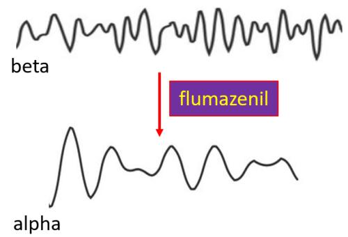 Figure 3. EEG. [https://commons.wikimedia.org/wiki/File:Eeg_alpha.svg], [https://commons.wikimedia.org/wiki/File:Eeg_beta.svg]