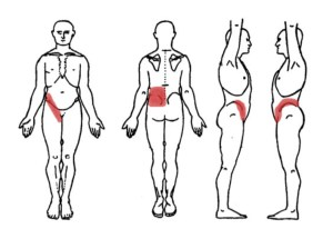 Kidney Pain  (Location, Anatomy), Causes (Stone pain