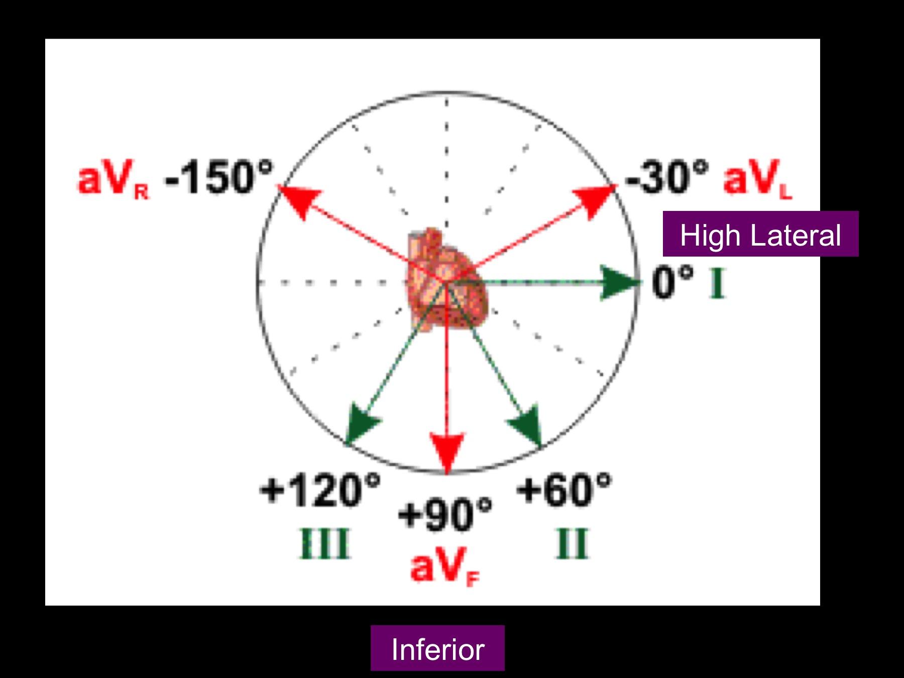 4 lead ekg placement diagram wiring adalah myocardial ischaemia  ecg correlation coremed