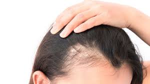 Difference between Dandruff and Psoriasis