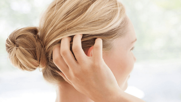 Relieve a Dry, Itchy Scalp Naturally