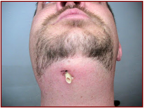 emergency treatment of dental abscess