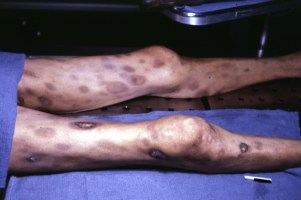 disseminated-intravascular-coagulation-4
