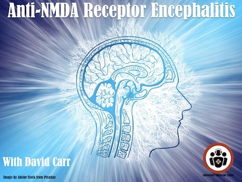 David Carr on Anti-NMDA Receptor Encephalitis