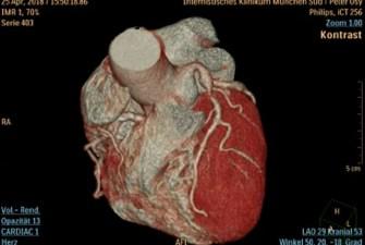 Лечение сердца в Германии кардиоцентр Осипки