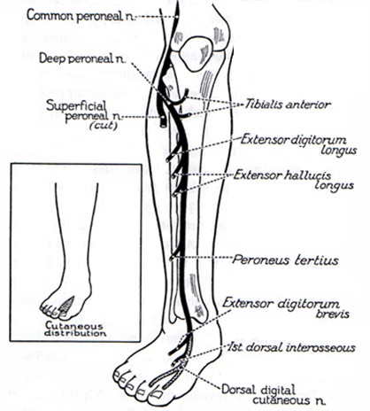 Common Peroneal Nerve (L4