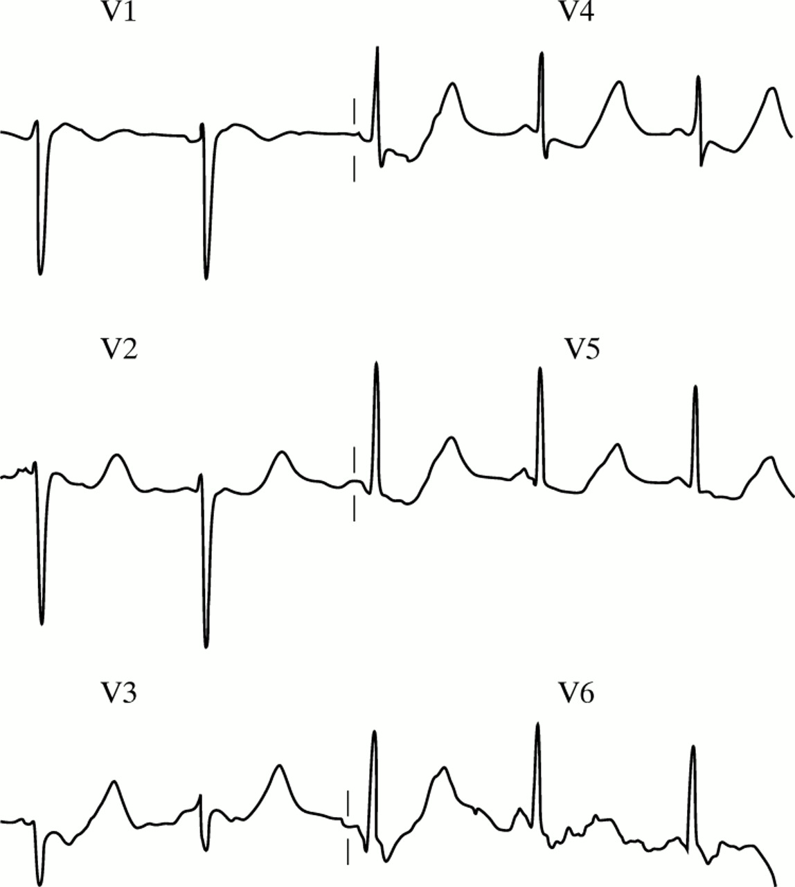 Recognising Signs Of Danger Ecg Changes Resulting From An Abnormal Serum Potassium