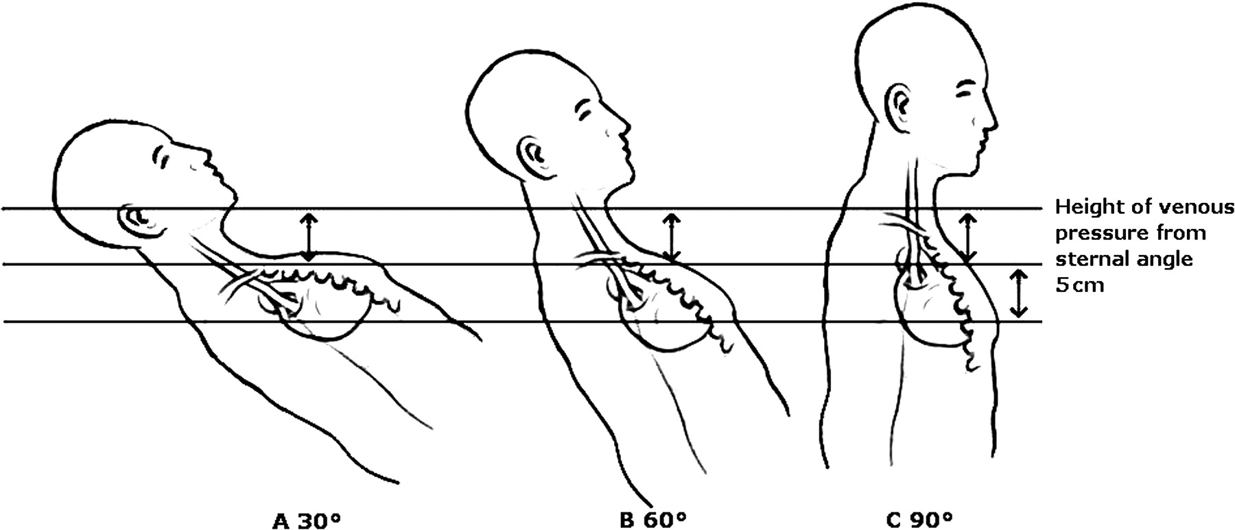 Sonographic assessment of jugular venous distension and B