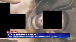 Syria Torture (Report 2011-2013)