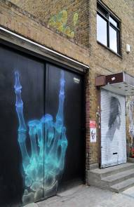 X ray metal