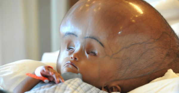 Baby Born In India With Two Brains In Same Body | Empire News
