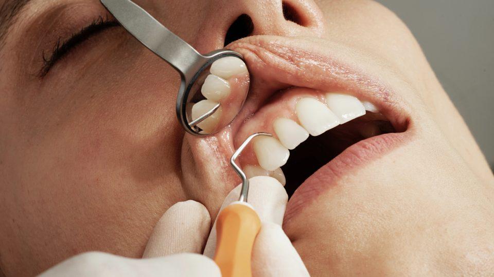 Does Oil Pulling Help Dental Plaque or Gingivitis?
