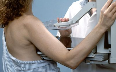 Most Women May Experience at Least One False-Positive Mammogram