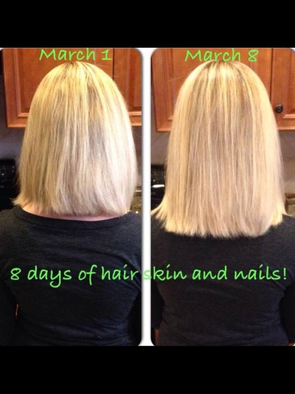 Hair Skin And Nails Vitamins Before And After : nails, vitamins, before, after, Nails, Vitamins, Before, After, VitaminWalls