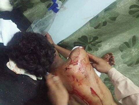 In Taiz New Massacre By Horthi-Saleh Militias 19 wounded civilians, including children